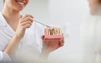 implanty szczecin lighthouse dental chirurgia stomatologiczna