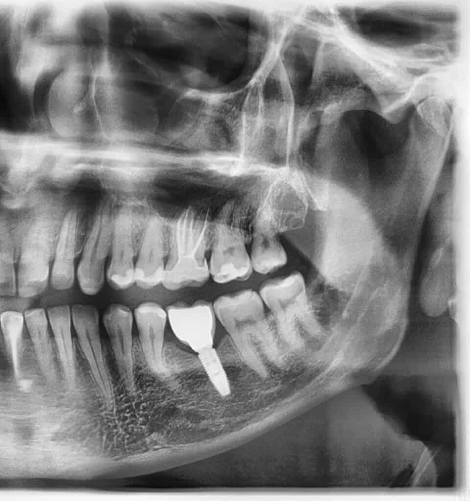 Ryc.7. Pantomogram strony lewej szczęki i żuchwy wykonany około 3 miesiąca od rozpoczęcia leczeniaząb 26 przeleczony kanałowo, odbudowany za pomocą endokorony, w miejscu braku zęba 36 implant z koroną