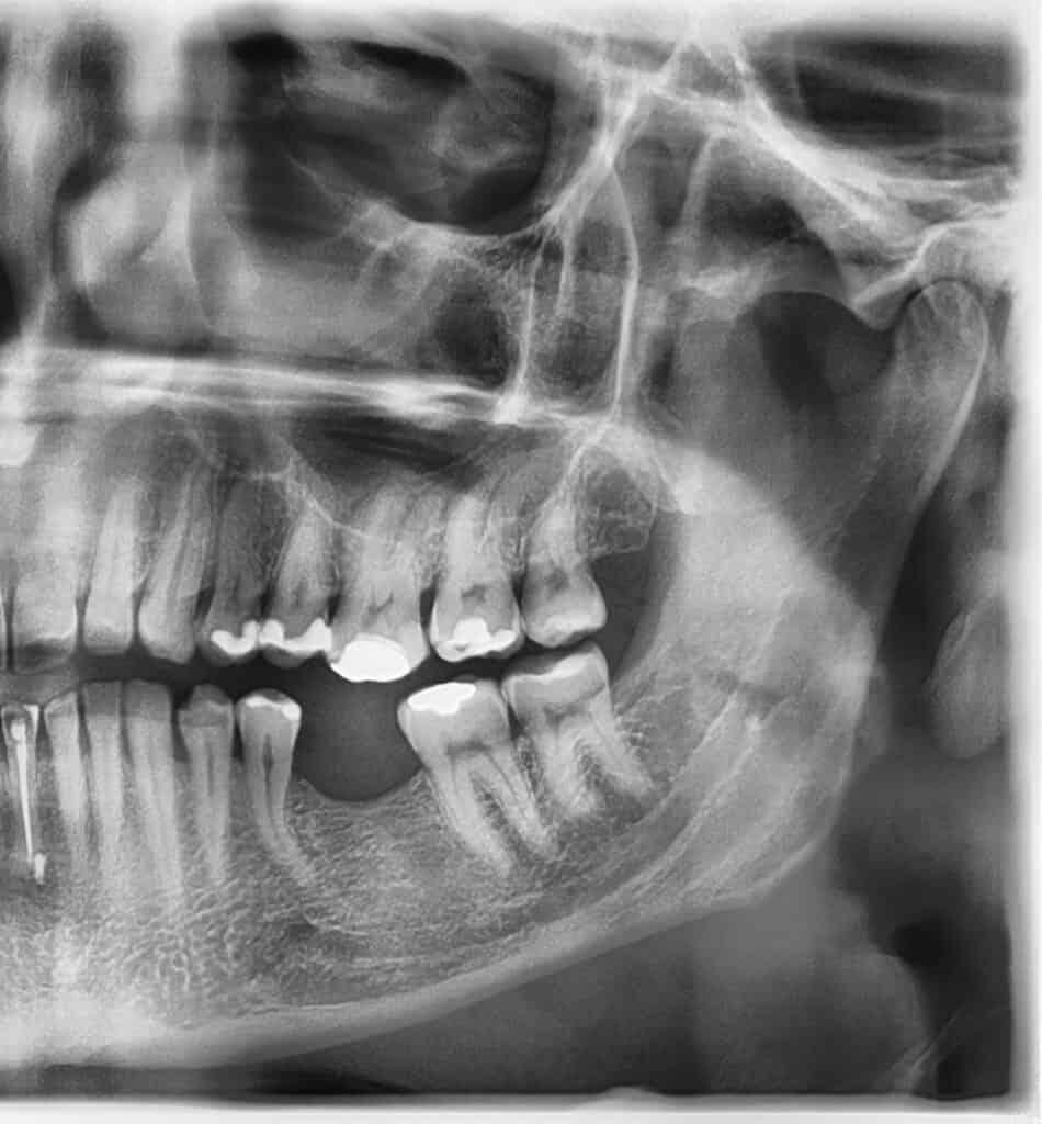 Ryc. 1. Pantomogram strony lewej zębów szczęki i żuchwy wykonany w momencie zgłoszenia się pacjenta do gabinetu