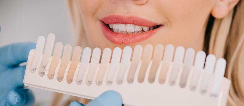 wybielanie zębów szczecin gdzie